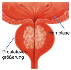 nicht bakterielle prostatitis